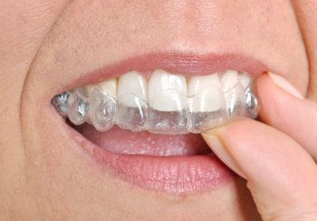 Getting Beautiful Straight Teeth with Invisalign