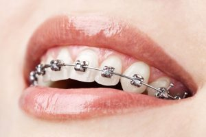 Braces 101: Understanding How Braces Work
