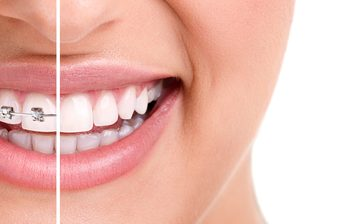 Beauty and Health Benefits You Can Get from Straightened Teeth