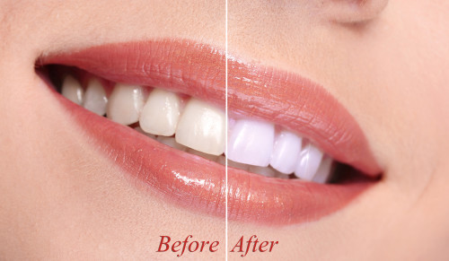 Options For Effectively Whitening Your Teeth at Home